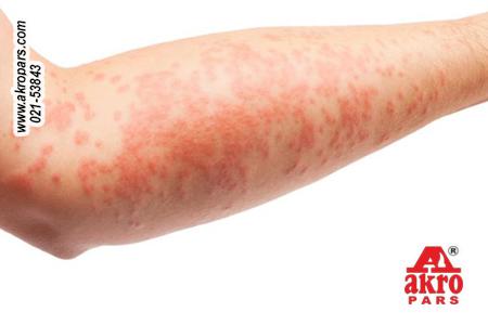 آلرژی بزرگسالان به مواد شوینده