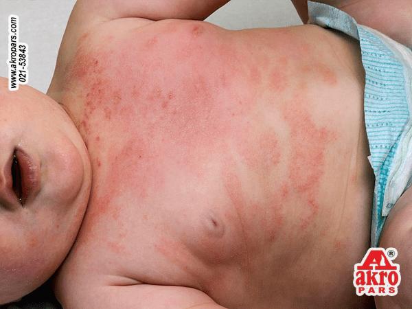 آلرژی کودکان به شوینده های لباس